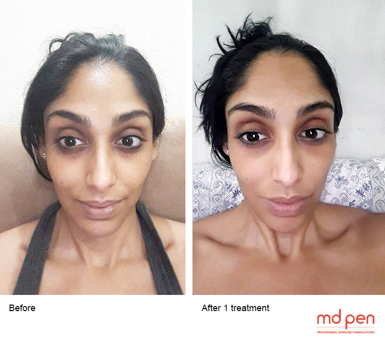 Saadiya MDPen Micro Needling After 1 treatment