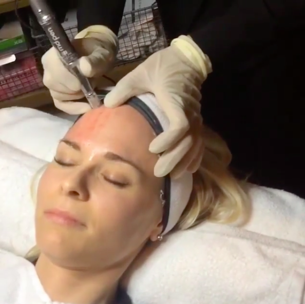 MDPen Micro Needling on forehead