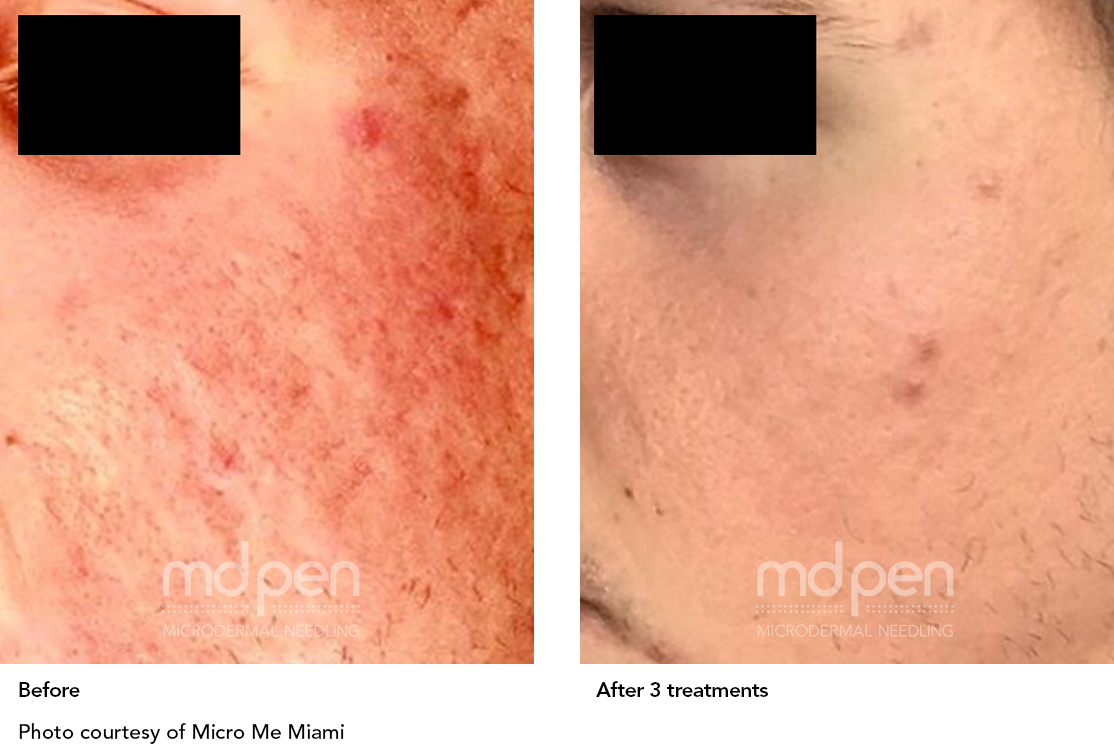 MDPen_BeforeAfter_011419_acne_v01