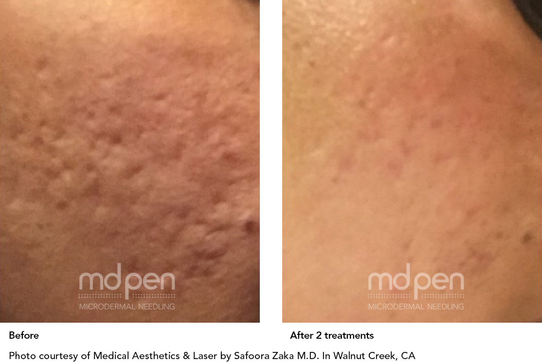 MDPen_BeforeAfter_011419_acne_v02