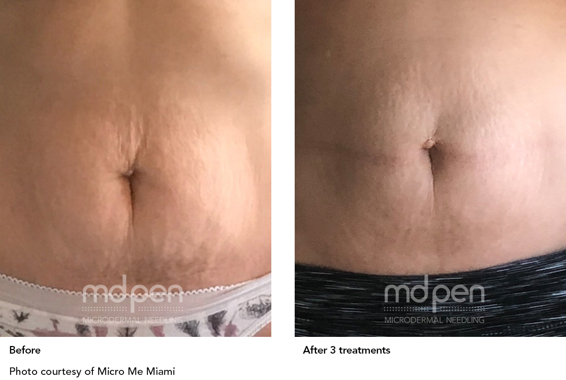 MDPen_BeforeAfter_011419_tummy