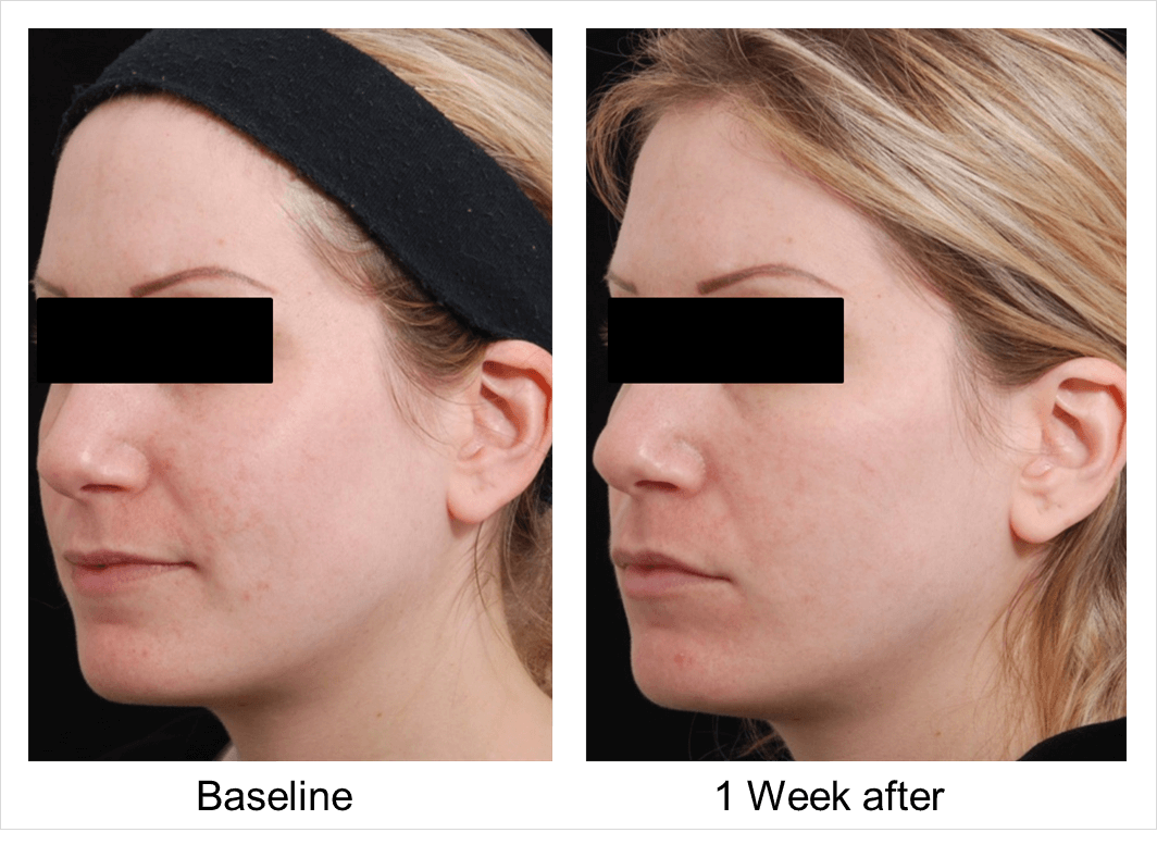 microneedling before and after 3