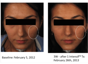 microneedling before and after 4