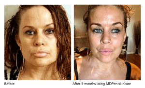 MDPen MicroNeedling Before and After Image