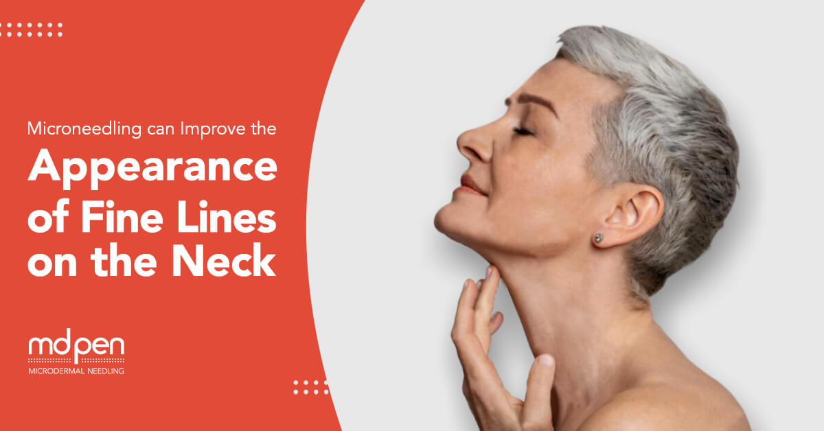 microneedling fine lines on the neck